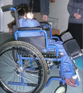 A young, Georgian girl slumps in an adult wheelchair prior to a postural support fitting.