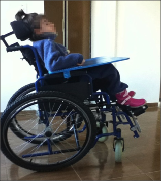 The same girl sits upright in an age-appropriate wheelchair after a customized postural support fitting.